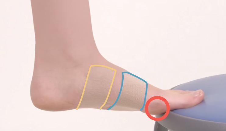足底腱膜炎にも効いた!足が疲れにくくなる魔法のテーピング